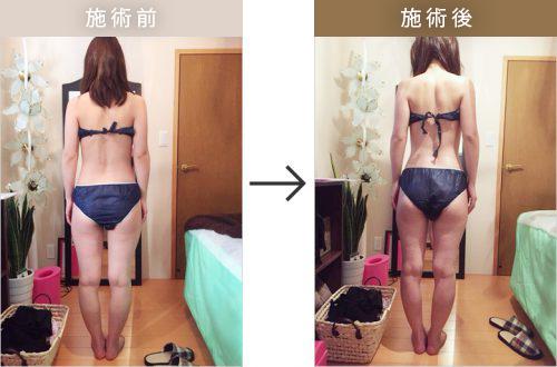 筋膜リリース(左)施術前(右)施術後